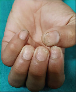 Illustration of Nail Growth In A 2 Year Old Child?