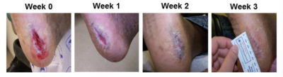 Illustration of Can Open Wounds Heal In 1 Week?
