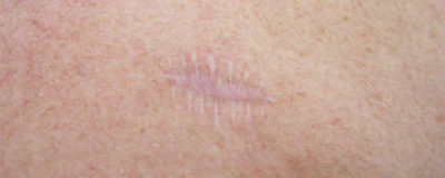 Illustration of Overcoming Surgical Scars That Re-open?