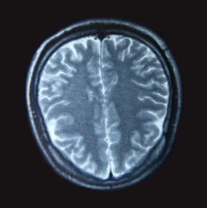 Illustration of Causes And Appropriate Treatment For Encephalomalacia?