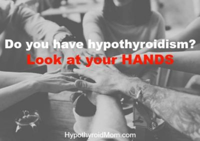 Illustration of The Hands Of People With Hypothyroidism Often Tremble With Palpitations?