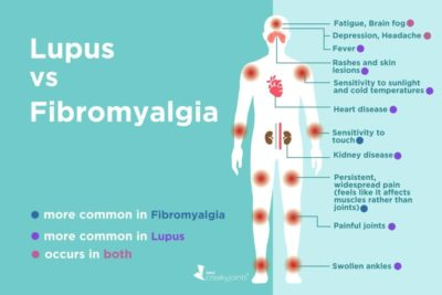 Illustration of Difference In Symptoms Of Fibromyalgia And Lupus?