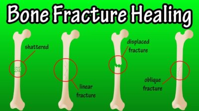 Illustration of The Signs Of The Fracture Are Healed?