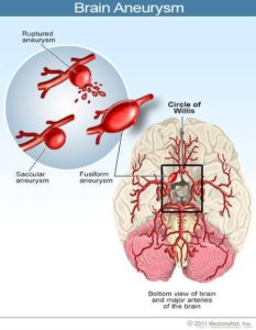 Illustration of Rupture Of Blood Vessels In The Brain Accompanied By Fever?