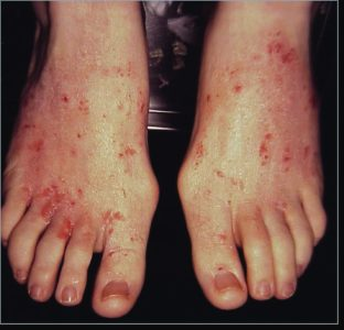 Illustration of Itchy Feet After Taking Tuberculosis Medicine?