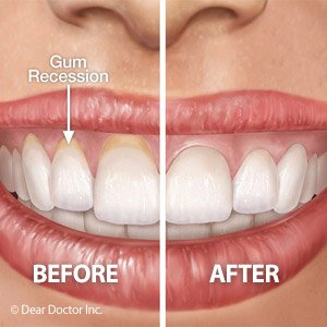 Illustration of Overcoming Toothaches And Gums That Make It Difficult To Swallow?