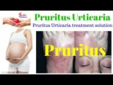 Difference Between Pruritus And Urticaria?