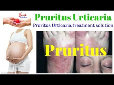 Illustration of Difference Between Pruritus And Urticaria?