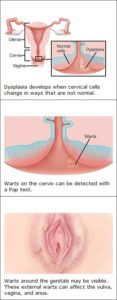 Illustration of Is Genital HPV Really A Common Virus?