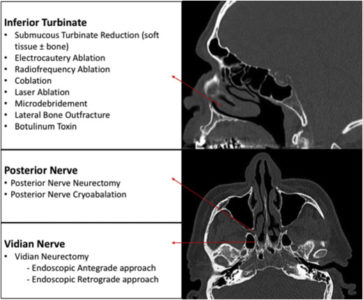 Illustration of Neurectomy Surgical Procedure In Rhinitis Sufferers?