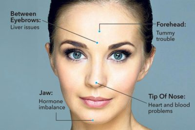 Illustration of The Lump Between The Eyebrows Above The Nose?