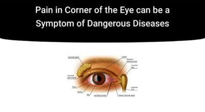 Illustration of Pain In The Corner Of The Eye After Waking Up?
