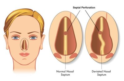 Illustration of The Nose Still Remains Blocked After Sinus, Conka And Septal Surgery?