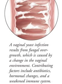Illustration of Treatment For Vaginal Discharge Caused By Fungus?