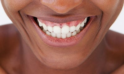 Illustration of How To Deal With Uneven Gums?