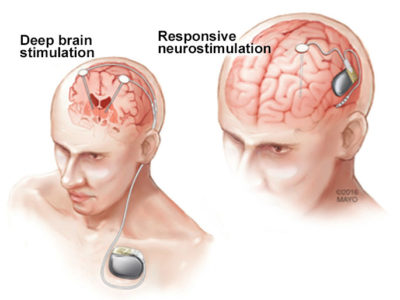 Illustration of Seizures And Hearing Loss After Craniotomy Surgery?