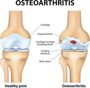 Illustration of Joint Pain After Prolonged Consumption Of Weight Gain Drugs?