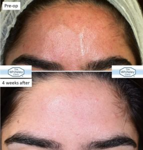 Illustration of Visible Blood Vessels On The Forehead?