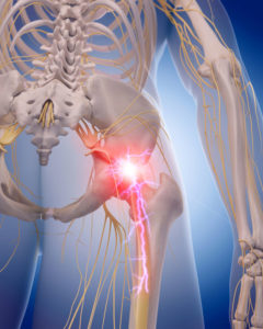 Illustration of The Right Spine Hurts To The Thighbone?