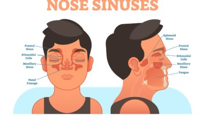 Illustration of Sinusitis Treatment That Has Been Going On For 5 Years?