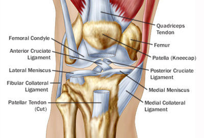 Illustration of Pain In The Back And Front Knees When Bent Or Straightened?