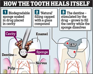 Illustration of Treatment Of Tooth Decay With Tideglusib?