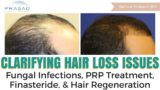 Treatment Of Baldness Due To Fungal Infections?