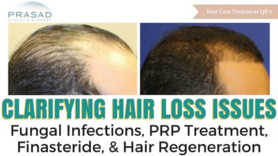 Illustration of Treatment Of Baldness Due To Fungal Infections?