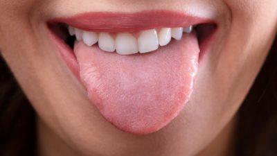 Illustration of Overcoming The Tongue That Is Difficult To Distinguish The Taste?