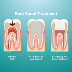Illustration of Causes And Treatment Of Swelling After Dental Canal Treatment?