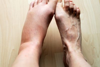 Illustration of Swollen Feet About 1 Week After Falling Off The Motorbike?