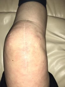 Illustration of Recovery Time For Knee Scar Sutures Can Run Normally?