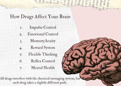 Illustration of Causes The Thoughts In The Brain And The Actions Performed Out Of Sync?