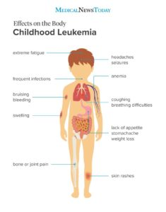 Illustration of Are There No Known Symptoms Of Leukemia?