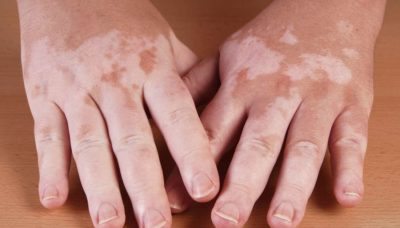 Illustration of Whitish Streaks Appear On The Skin Of The Hands?