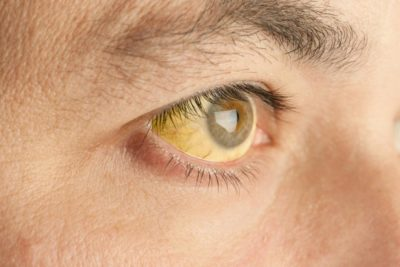 Illustration of Cause Yellow Vision When Viewing?