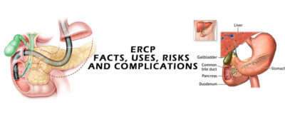 Illustration of Risk Of Complications From Endoscopy?