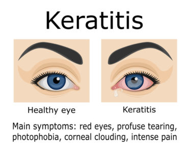 Illustration of Safety Of Using Eye Drops For Keratitis?
