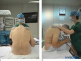 Epidural Anesthesia While Undergoing Curettage?