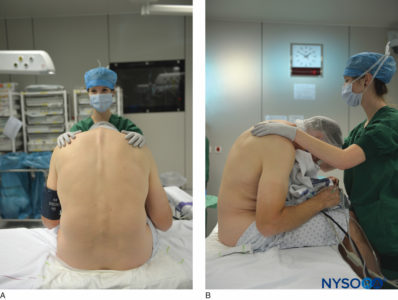 Illustration of Epidural Anesthesia While Undergoing Curettage?