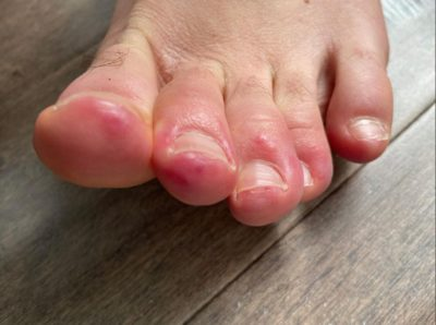 Illustration of Red Spots On The Soles Of The Feet And Feels Sore?