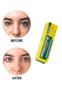 Illustration of The Use Of Eye Cream For The Eye Bags Of 16 Years Old?