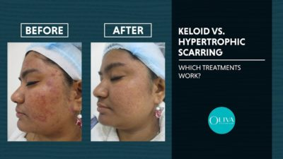 Illustration of Treatment Of Acne Scars That Form Keloids?