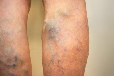 Illustration of Post-biopsy Pain Management In Lupus Patients?
