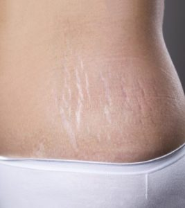 Illustration of Stretch Marks Turn Brown After Applying The Ointment?