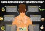 Overcoming White Scars Like Tinea Versicolor With Natural Ingredients?