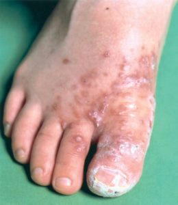 Illustration of Redness Of The Skin On The Feet After Taking Rifampicin?