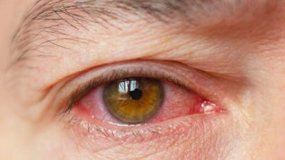 Illustration of Painful, Tear-inducing Eyes?