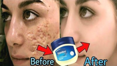 Illustration of Remove Scars With Vaseline?