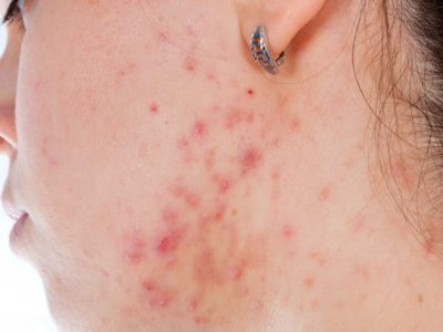Illustration of Use Of Nicotinamide Gel For Acne Use?